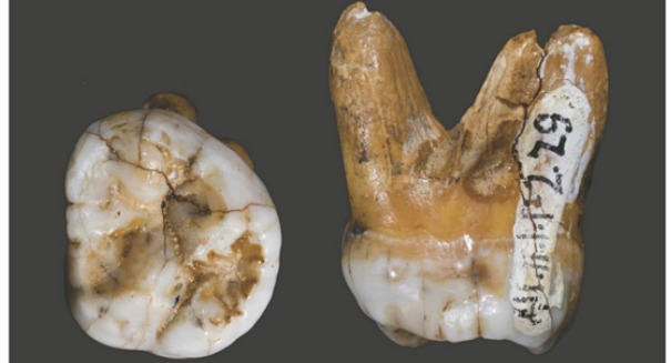 An old tooth may have just solved a big mystery